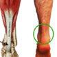 Chronic Achilles Pain